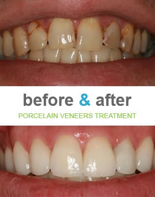 Best Way To Have Natural Looking Front Teeth With Crowns