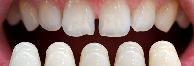 porcelain-veneers-can-now-improve-or-repair-your-smile-for-decades-to-come