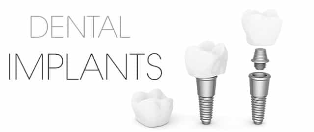 dental implants - oasis dental studio