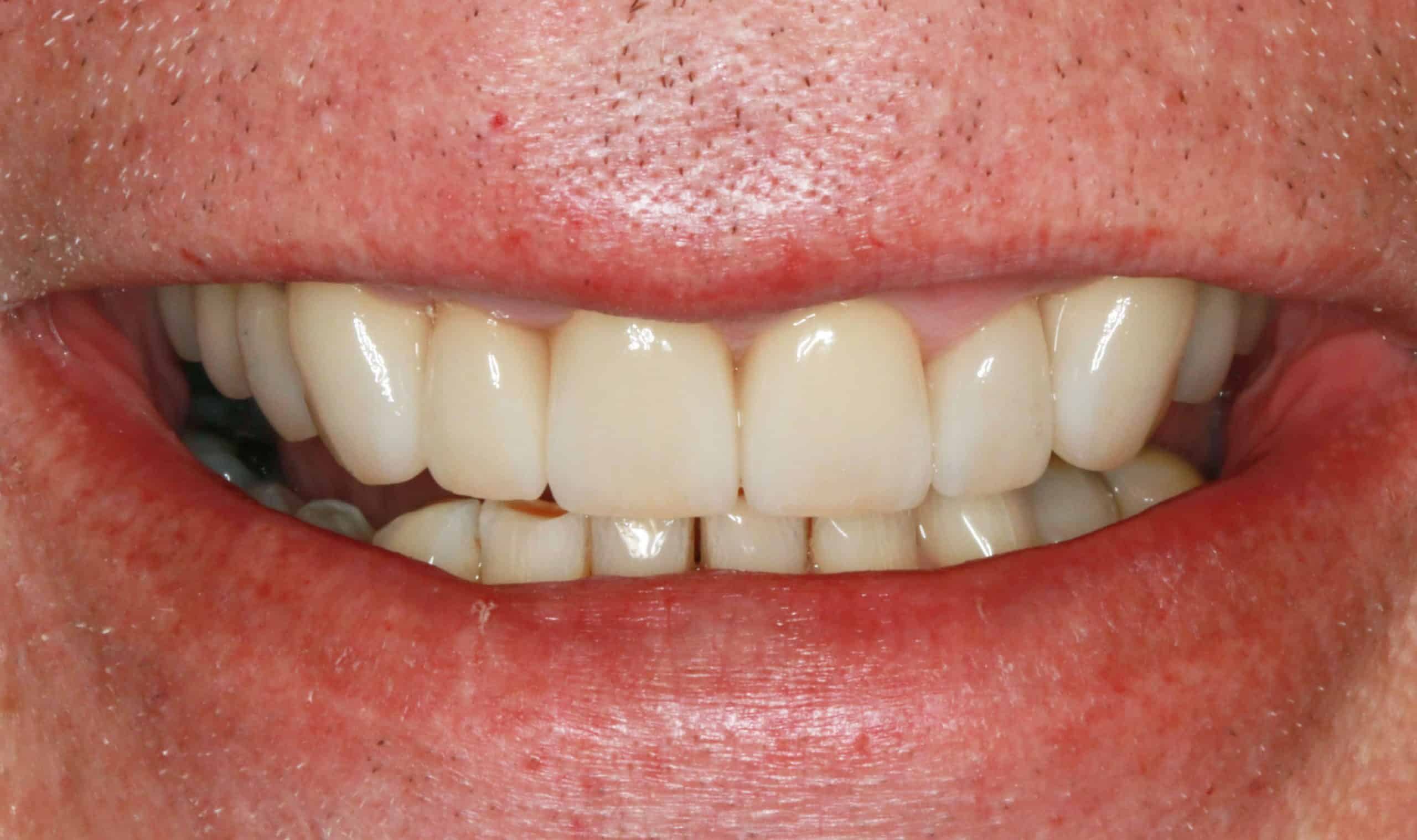 Smile corrections Crown Veneers Bridges