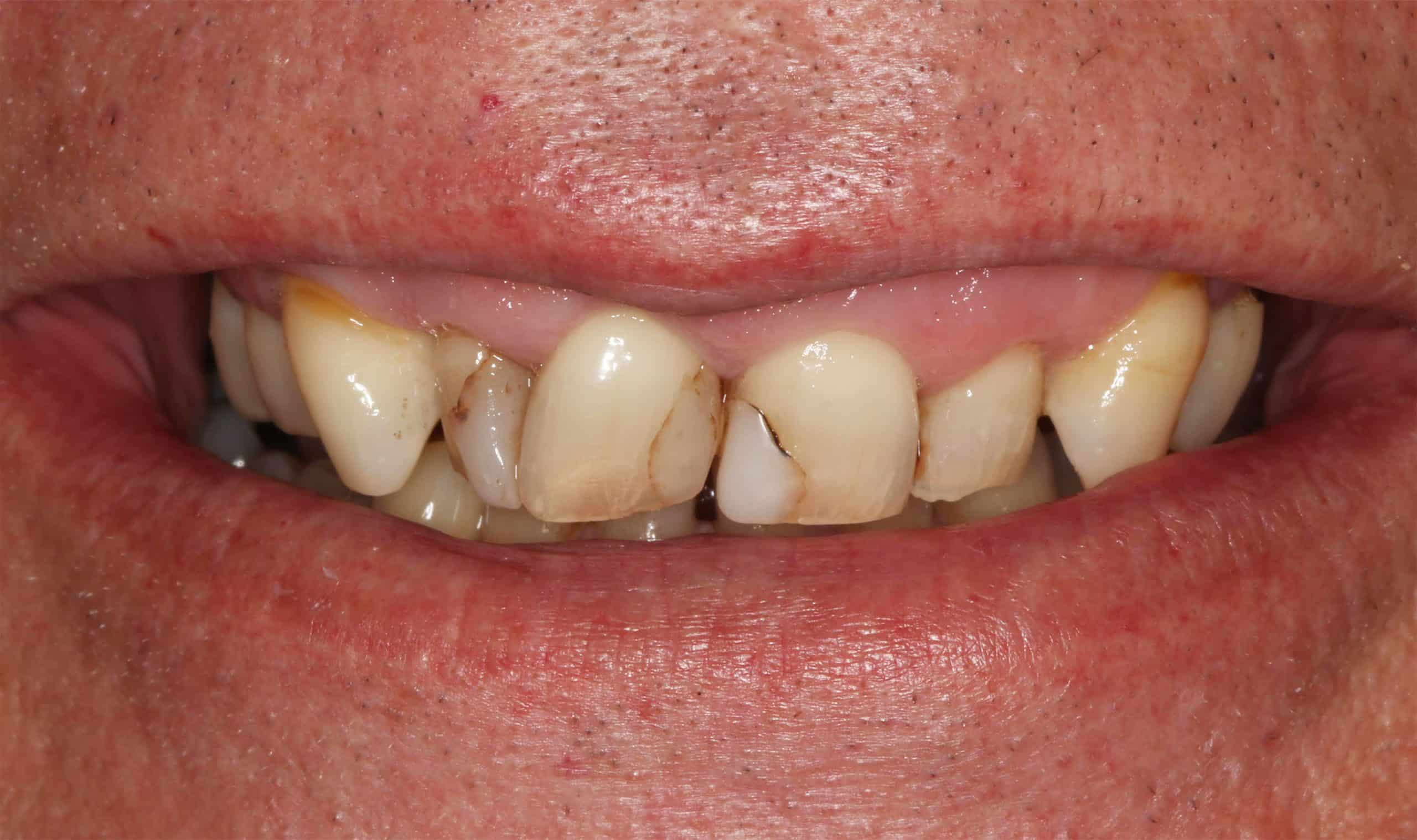 Before image of crown bridge and veneer treatment