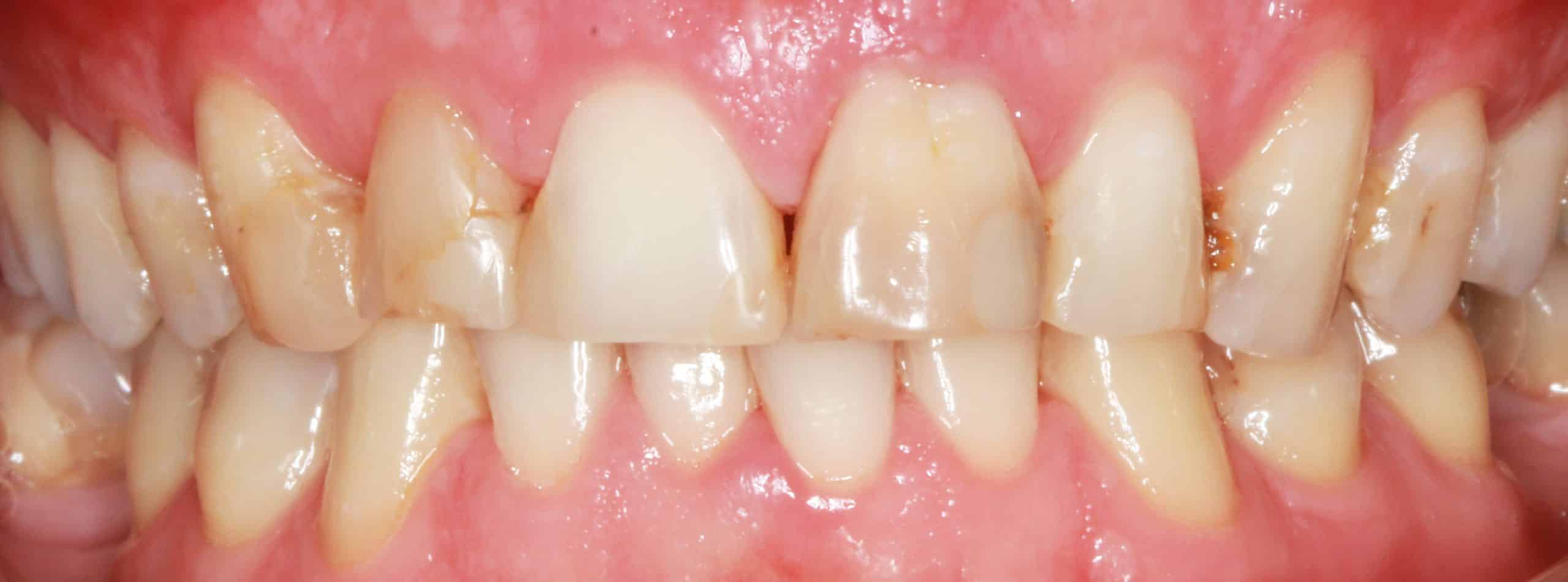 Porcelain Veneers Before Procedure