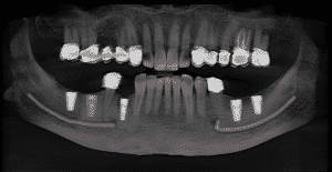 Xray Scans Teeth Implants Crowns