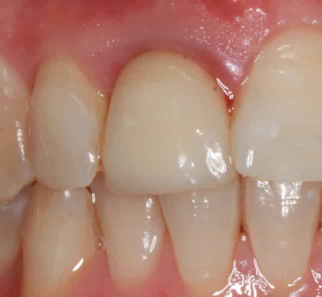 Failed Crown, Loose and causing gum pain