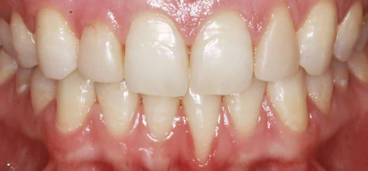 Tooth sensitivity, inflamed gums, aesthetic concerns
