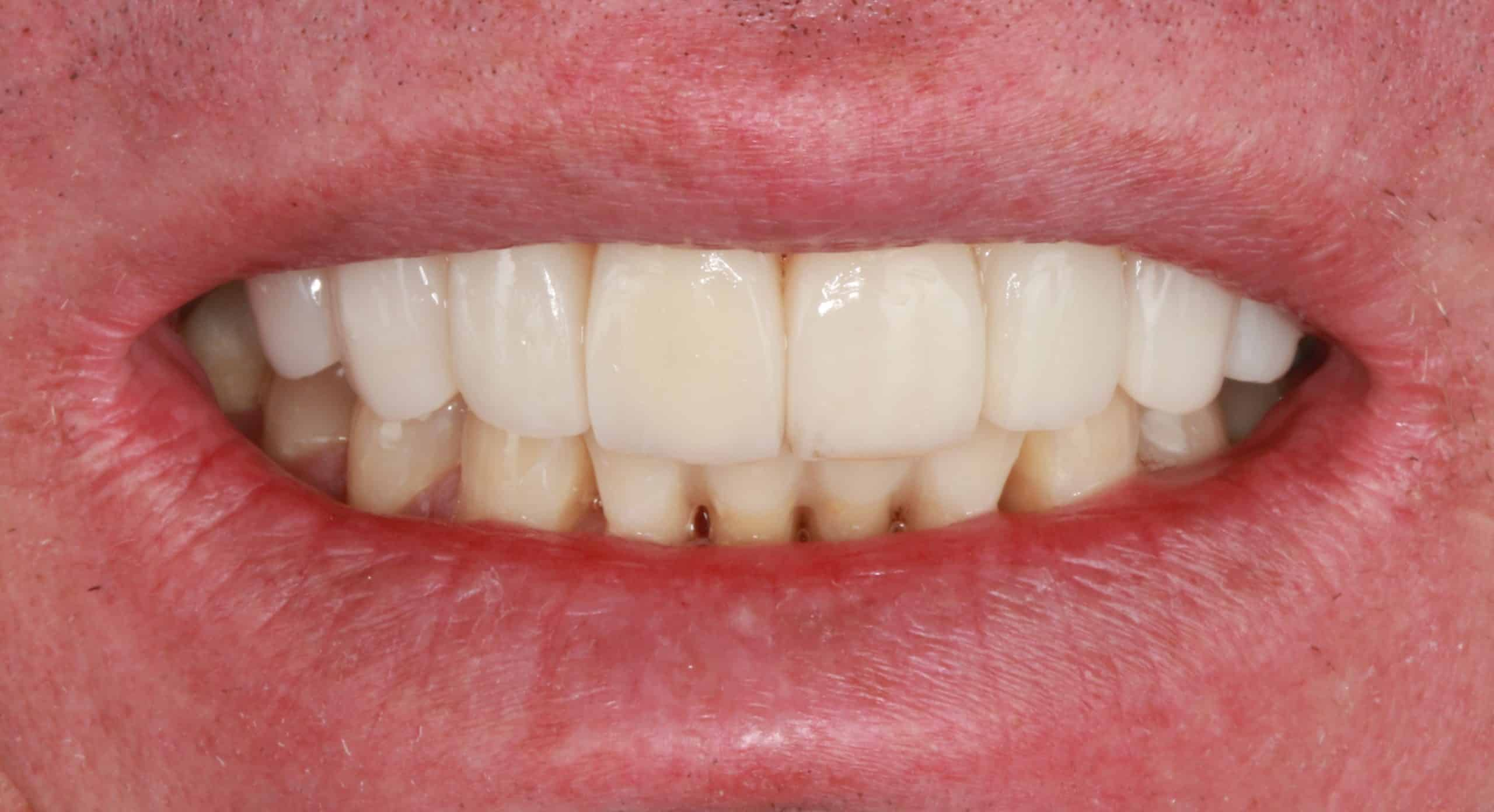 After composite veneers