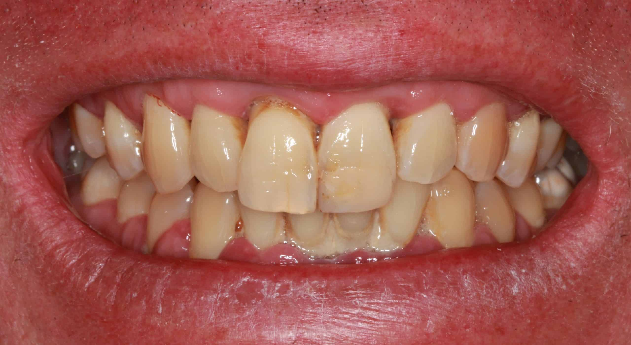 Periodontal Therapy and 8 Composite Veneers