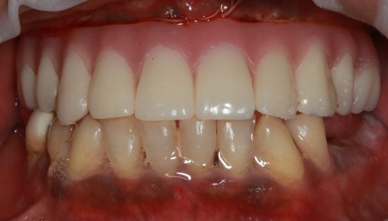 all-on-4-implant-placement