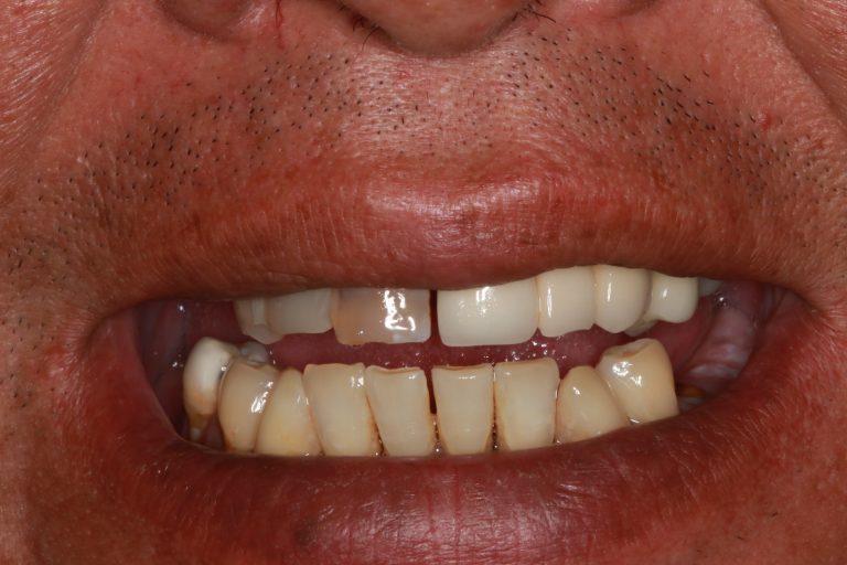 before-all-on-4-dental-implants