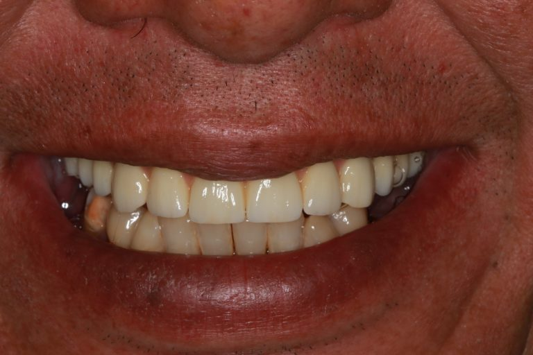 after-all-on-4-dental-implants