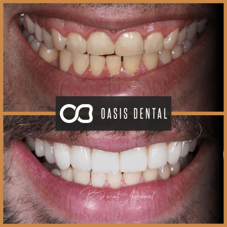 crown-lengthening-veneers-teeth