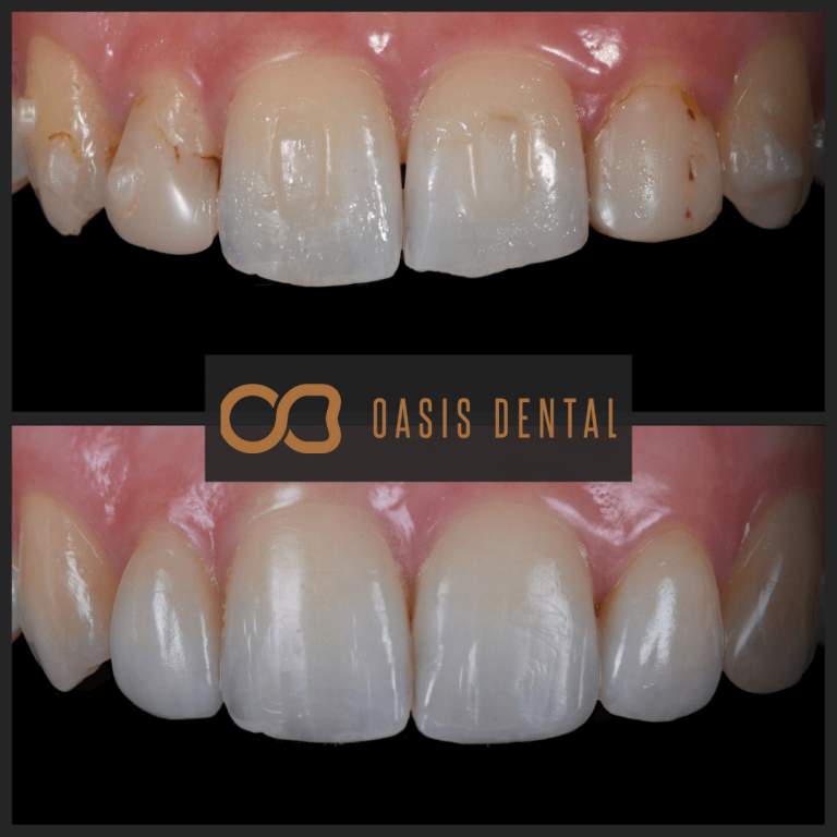 lateral-veneers-bonding-teeth