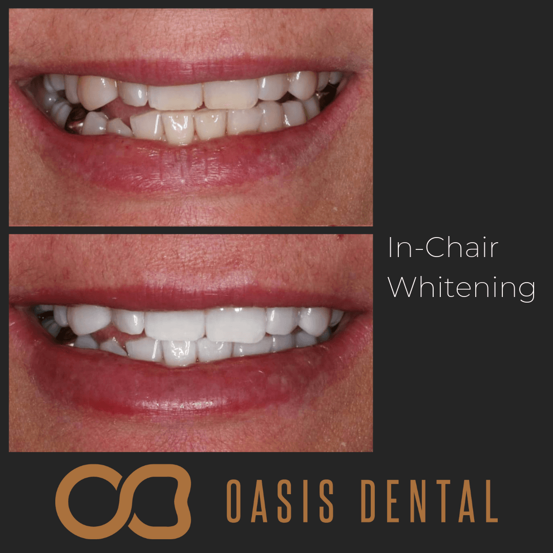 zoom-teeth-whitening-smile