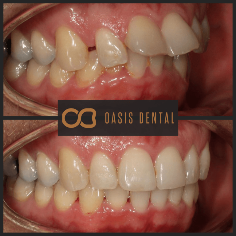 invisalign-composite-bonding-teeth