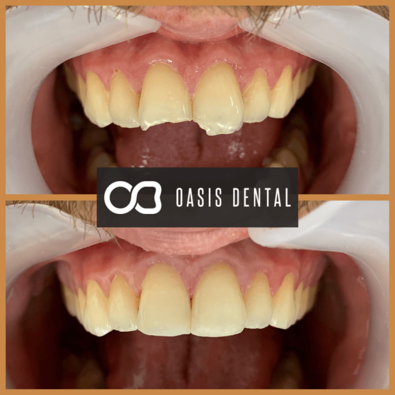 broken-tooth-bonding-composite-resin