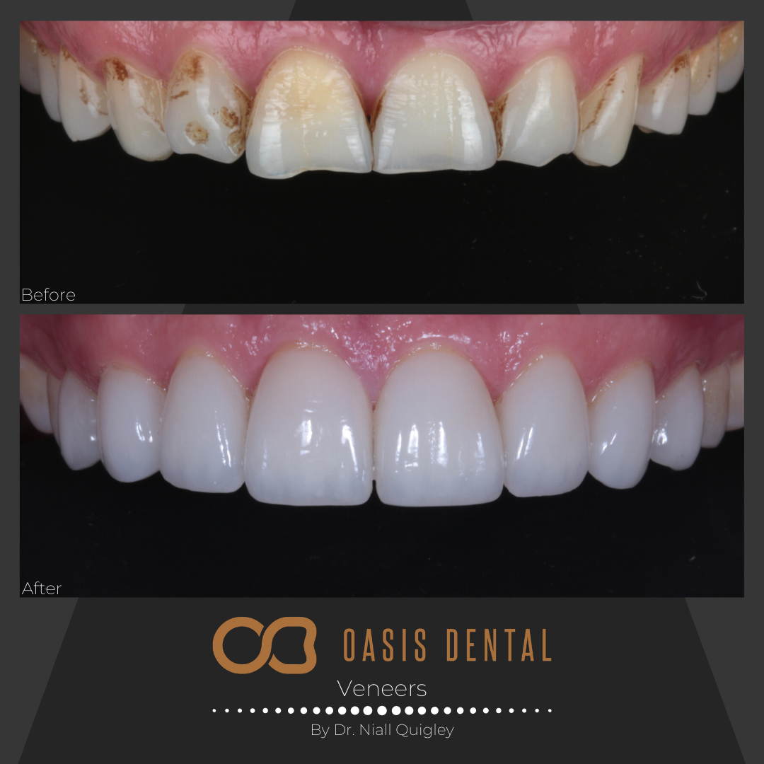 Porcelain Veneers & Composite Bonding Gold Coast  Oasis Dental Studio