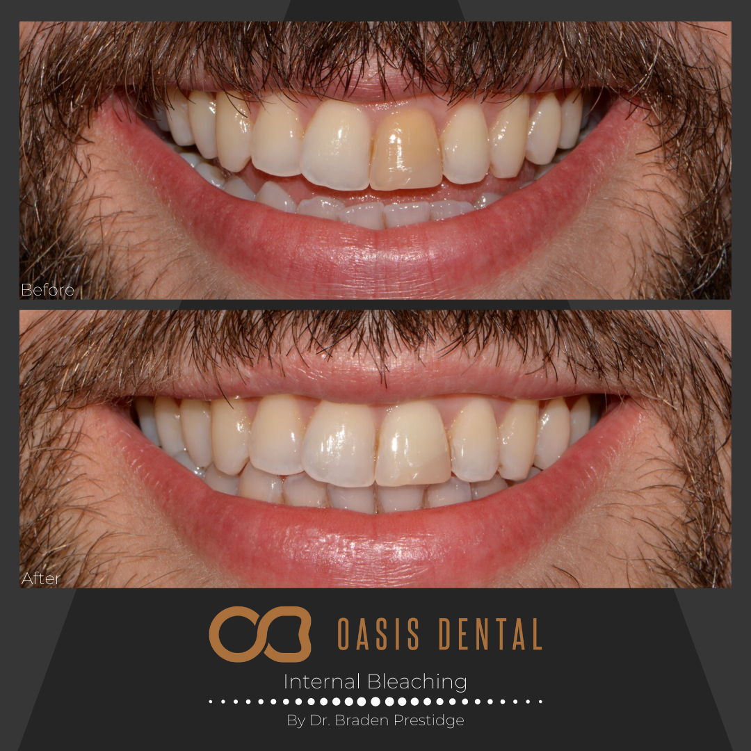 gold-coast-teeth-whitening