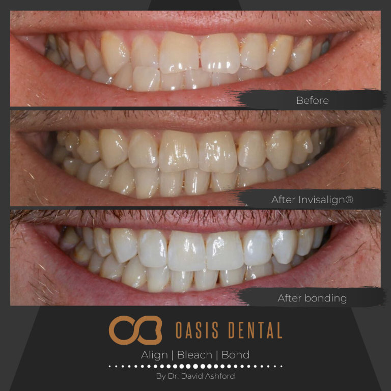 gold-coast-invisalign