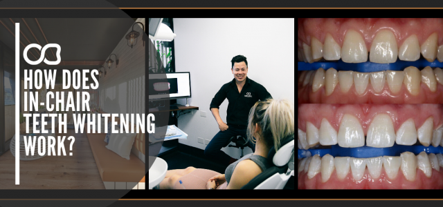 Gold_Coast_Dentist_In-Chair Teeth Whitening