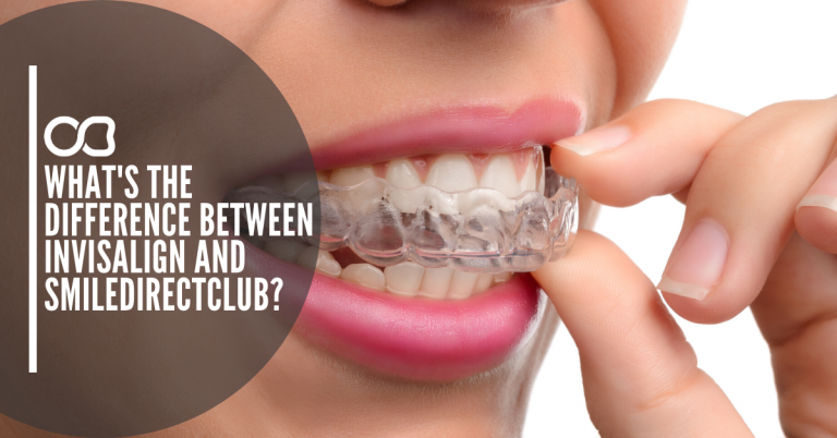 clear-aligners-braces