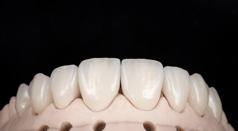 veneers-ready-for-placement