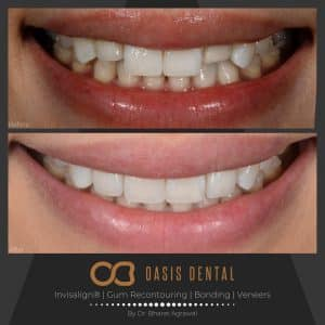 porcelain-veneers-before-after-gold-coast
