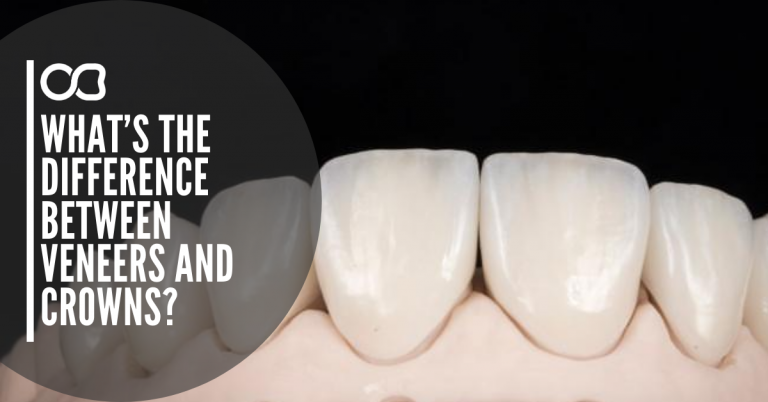difference-between-veneers-and-crowns
