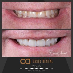 gold-coast-dental-veneers-before-after