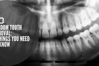 wisdom-tooth-x-ray