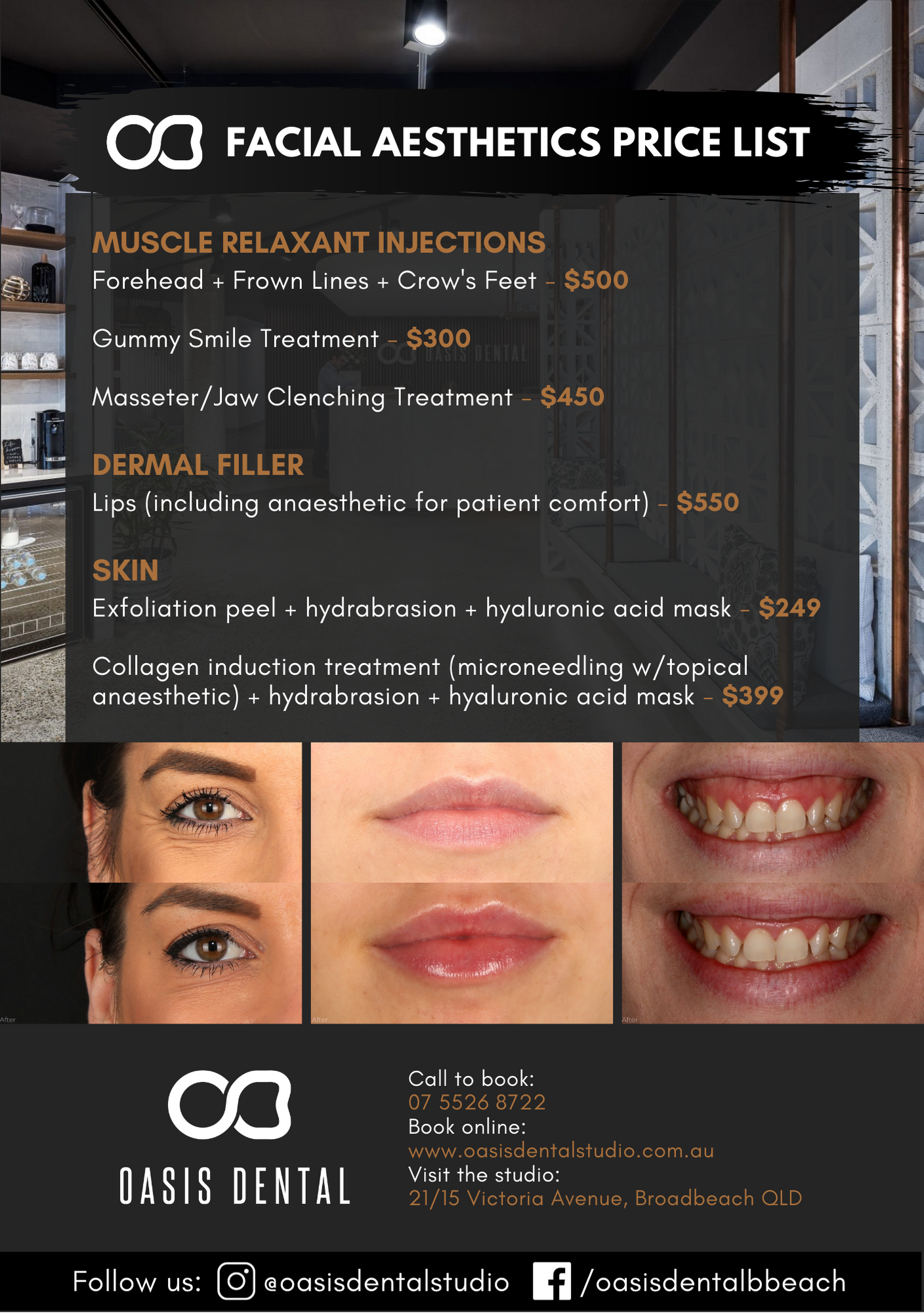 gold-coast-injectables-costs