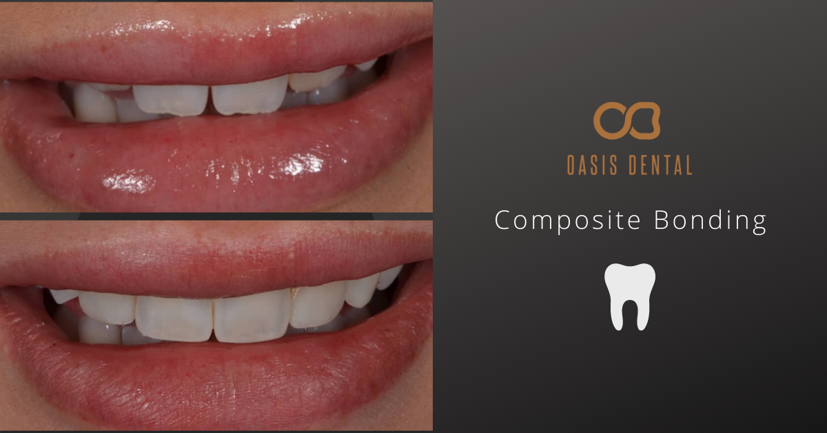 composite-bonding-gold-coast-before-after