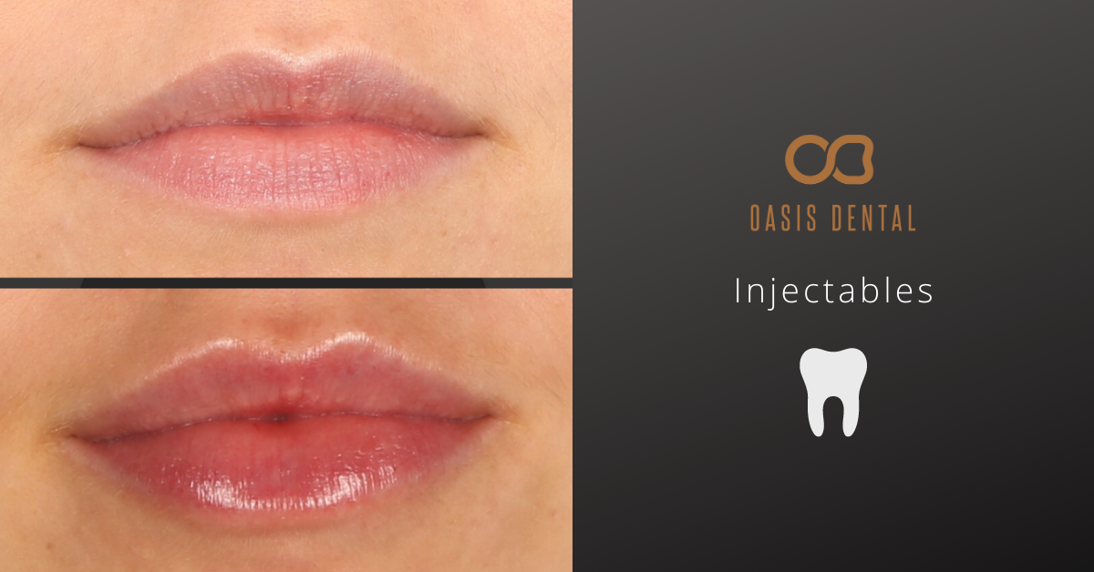 injectables-gold-coast-before-after