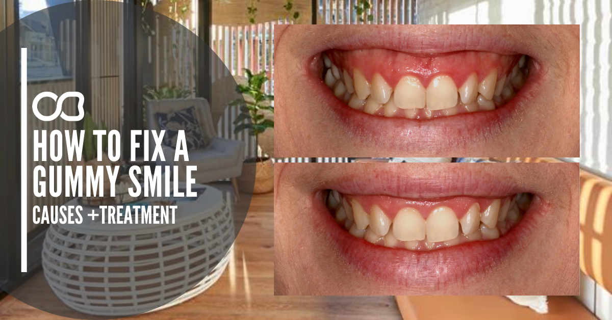 gummy-smile-treatment-blog