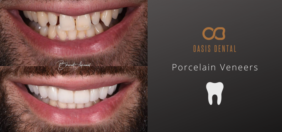 porcelian-veneers-gold-coast-before-after