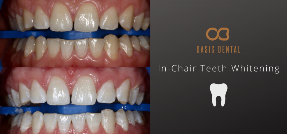 teeth-whitening-gold-coast-before-after